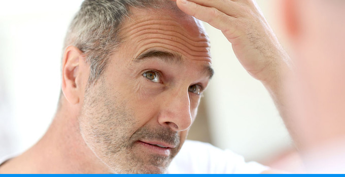 best hair loss treatments